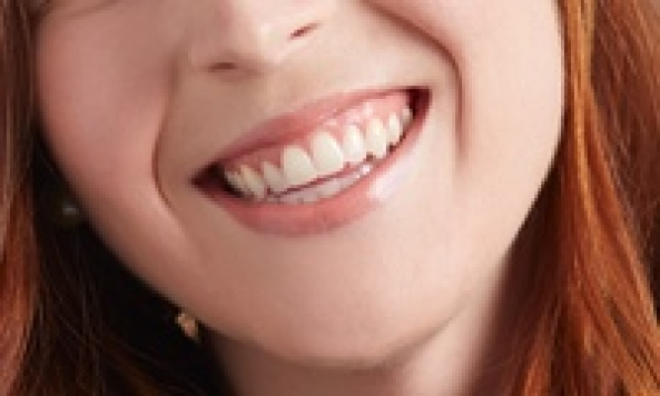 Exam, X-Rays, and Cleaning with Optional Teeth Whitening Treatment at Polo Dental Of Naples (Up to 74% Off)